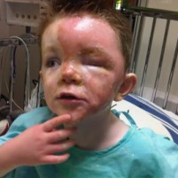 Autism…Burns…What Can The Community Do To Help A Little Boy With Both?
